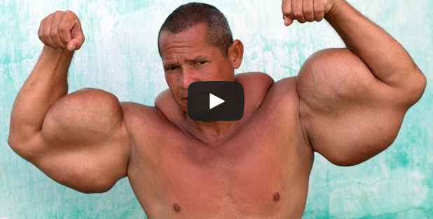 Arlindo De Souza: Injected Deadly Fillers To Get HUGE Arms (VIDEO)